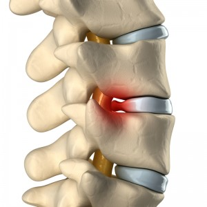 Close-up digital image of a herniated disc