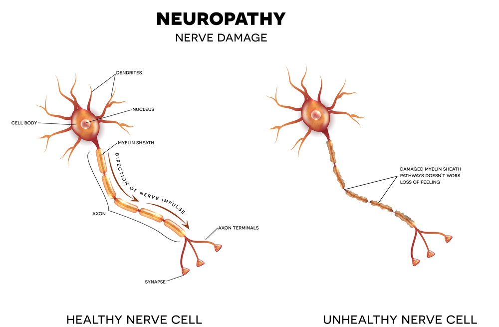 Neuropathy Broomfield