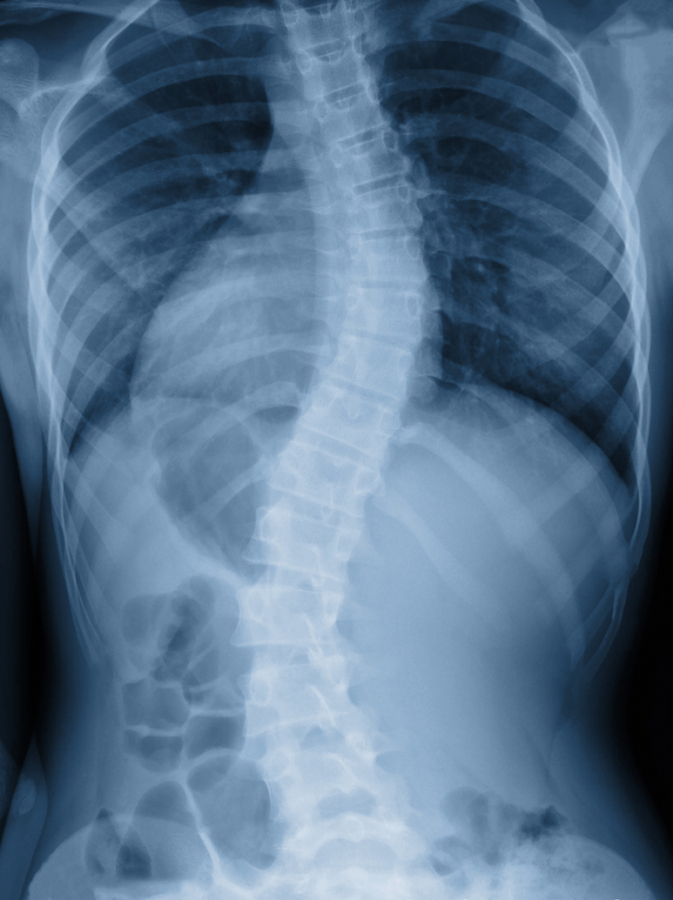 scoliosis treatment broomfield
